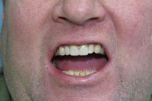 имплантация передних зубов в Минске