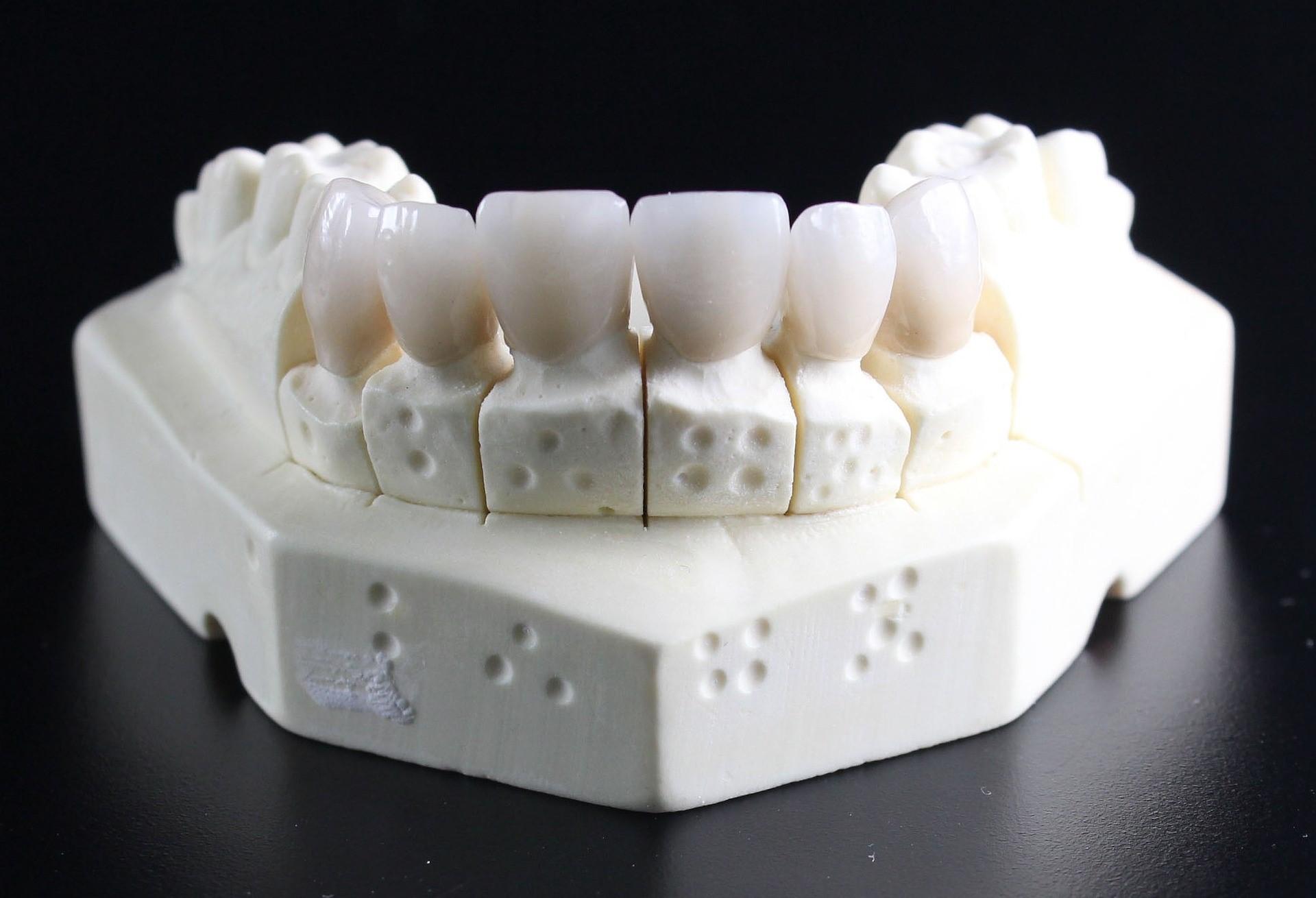 восстановление зубов в Минске