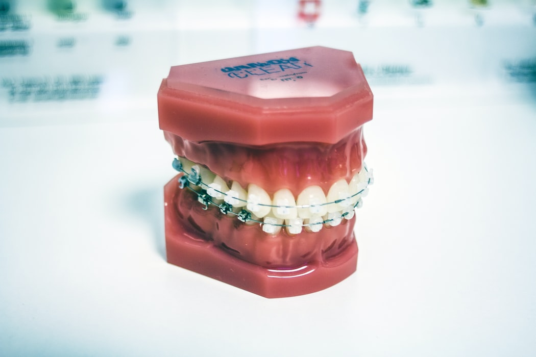 ортодонтическое лечение Минск